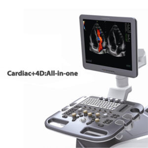 Chison i7 Ultrasound System
